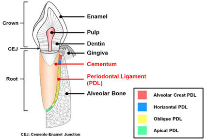 Illustration of a dental removal periodontal ligament procedure, showing how it is  done in Costa Rica.