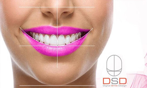 Close-up picture of a smiling young woman happy with her Digital Smile Design (DSD) at Premier Holistic Dental in Costa Rica.  She is wearing purple lipstick and showing perfect white teeth.