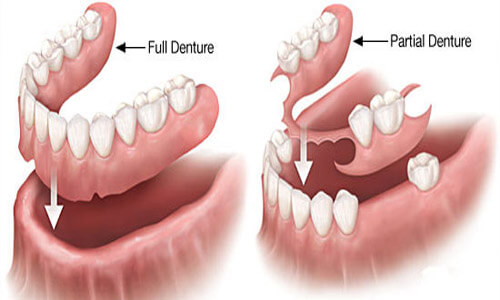 Illustration of a Holistic denture as made in San Jose, Costa Rica.  The illustration shows how a full denture or a partial denture fits into place in the mouth.