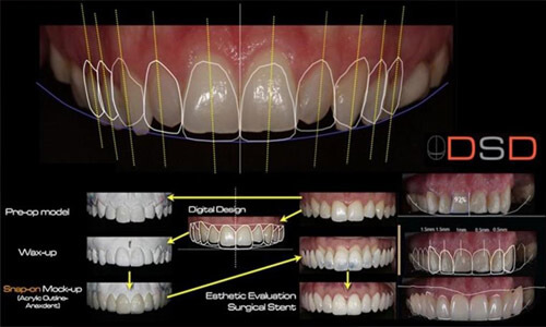 Illustration of a Digital Smile Design (DSD) computer screen showing a dental design.  The illustration shows several angles of teeth design.