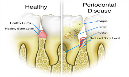 Illustration of a tooth with periodontal disease.  The illustration shows a healthy tooth and a diseased tooth for comparison.
