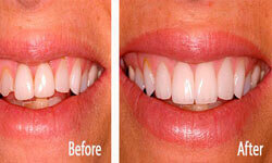 Picture of a smiling woman showing her dental veneers procedure by Premier Holistic Dental in London.